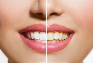 Woman Teeth Before and After Whitening. Over white background. H