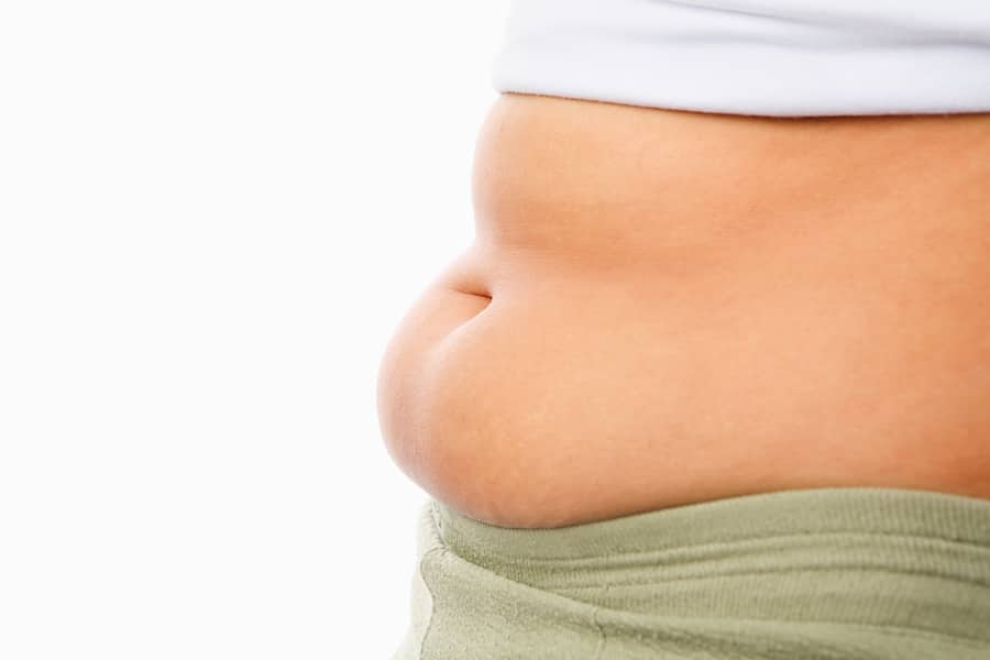 Fat Tummy For Obese Concept