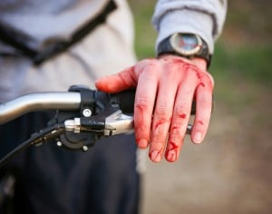 a mountain biker cyclist with blood all over his hands from wrec